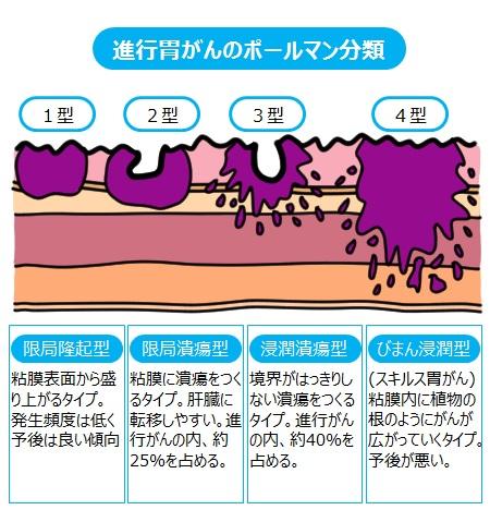 ステージ 4 胃がん スキルス