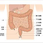 大腸がん予防に効果的な生活習慣の見直し方4つ