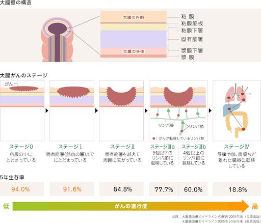 大腸 が ん ステージ 4 余命
